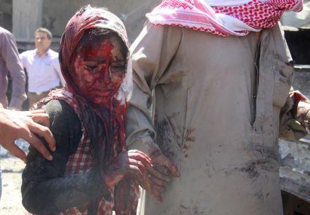 Κοριτσάκι με ματωμένο πρόσωπο, στο βόρειο Alep, Συρία, 25 Ιουνίου 2014.